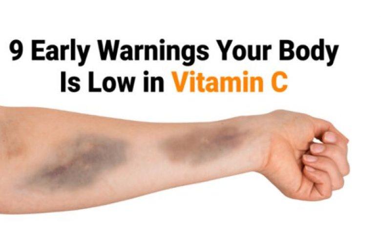 Signs of vitamin c deficiency