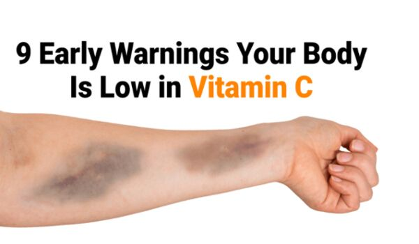 Signs of vitamin c deficiency