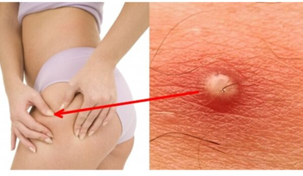 Boil on Inner Thigh