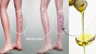 How to get rid of Varicose Vein