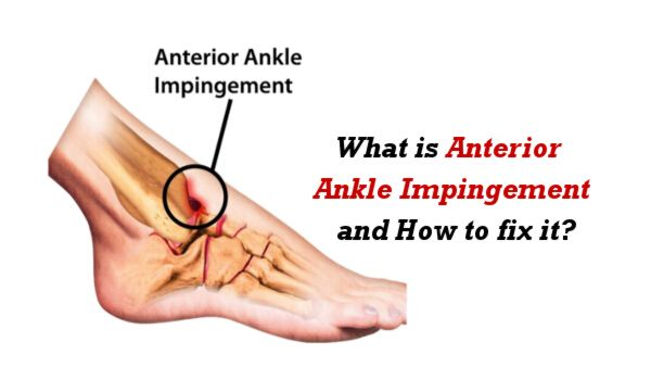 What is Anterior Ankle Impingement and How to fix it?