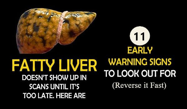 Early Warning signs of Fatty Liver Disease and How To Reverse it Fast