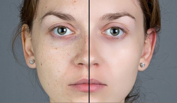 Photo of How Your Air Might Be Ruining Your Skin