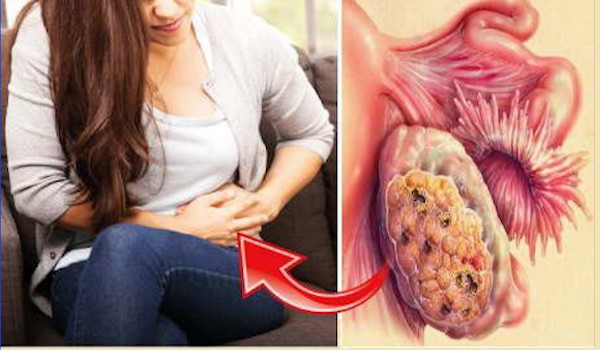 Photo of 9 Early Warning Signs of Ovarian Cancer Every Woman must Know!