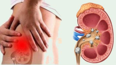 List of Foods that Cause Kidney Stones