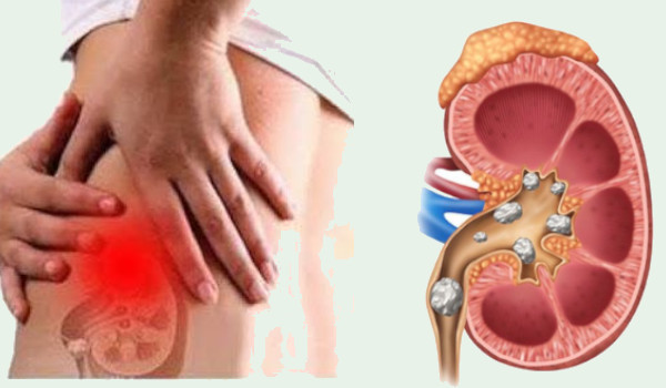Photo of List of Foods that Cause Kidney Stones You should Avoid