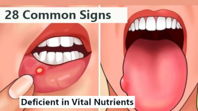 Photo of 28 Common Signs Your Body is Deficient in Vital Nutrients (With Solution)