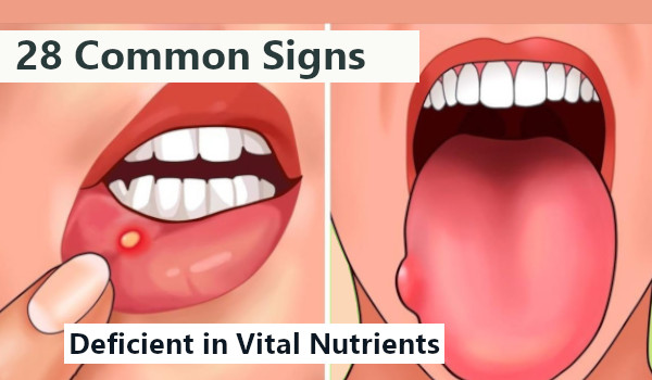 28 Common Signs Your Body is Deficient in Vital Nutrients (With Solution)