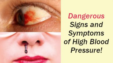 Photo of 9 Dangerous Signs and Symptoms of High Blood Pressure that you should not Ignore