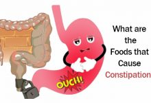 Photo of What are the Foods that Cause Constipation?