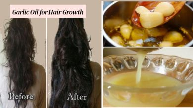 Photo of Garlic Oil for Hair: How to Grow Hair Faster with Garlic Oil
