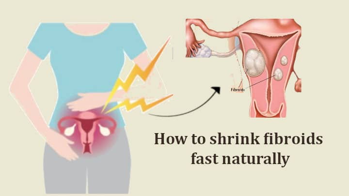 How to Shrink fibroids fast Naturally