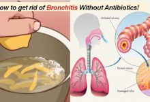 Photo of Bronchitis Prevention: How to get rid of Bronchitis Without Antibiotics!