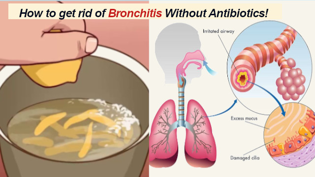 Bronchitis Prevention