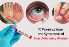 Photo of 10 Warning Signs and Symptoms of Iron Deficiency Anemia