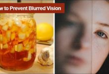 Photo of How to Prevent Blurred Vision and Improve Eyesight Naturally