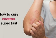 Photo of Itchy Eczema: How I Cured My 10 Years Eczema in Just 7 Days
