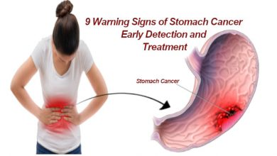 Signs of Stomach Cancer
