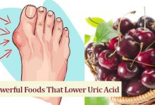 Photo of 11 Powerful Foods That Lower Uric Acid Naturally