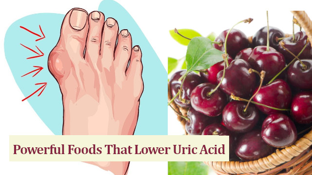Foods That Lower Uric Acid