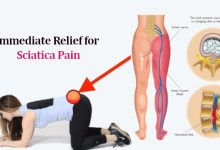 Photo of Sciatic Nerve Pain Relief: How to Treat Sciatica Nerve Pain Naturally