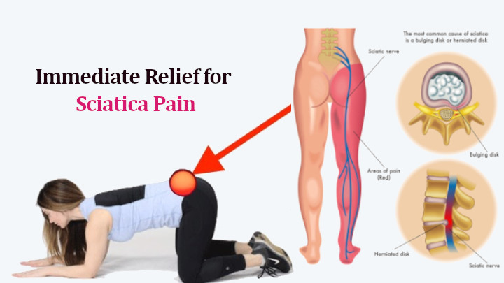 How to Treat Sciatica Nerve Pain
