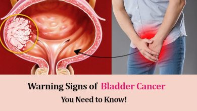 Photo of Bladder Cancer Warning Signs and Symptoms You Need to Know!