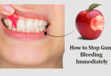 Photo of How to Stop Gum Bleeding Immediately with Natural Remedies
