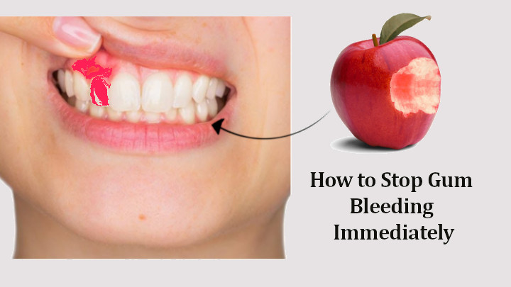 How to Stop Gum Bleeding Immediately