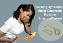 Photo of 10 Warning Signs that your body is full of Dangerous Parasites (Intestinal Worms)