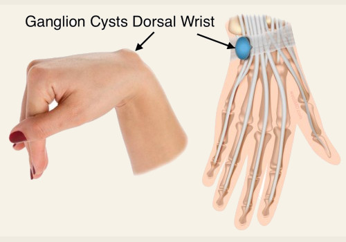 Ganglion Cyst Removal at Home