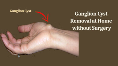 Photo of What is a Ganglion Cyst? Ganglion Cyst Removal at Home without Surgery