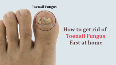 Photo of Toenail Fungus Cure: How to get rid of Toenail Fungus Fast at Home