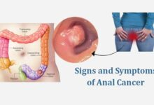 Photo of Early Warning Signs and Symptoms of Anal Cancer