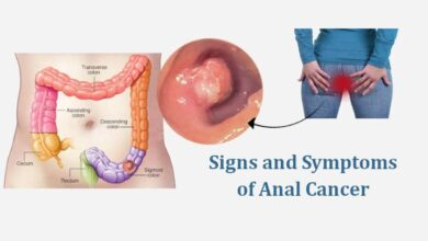 Signs and Symptoms of Anal Cancer
