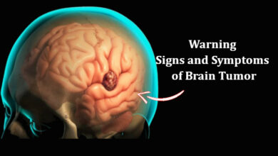 Signs and Symptoms of Brain Tumor