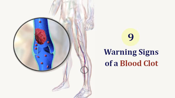 Signs of a Blood Clot