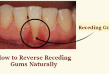 How to Reverse Receding Gums Naturally