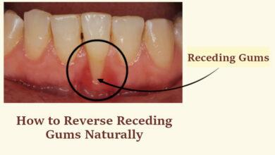 How to Reverse Receding Gums Naturally