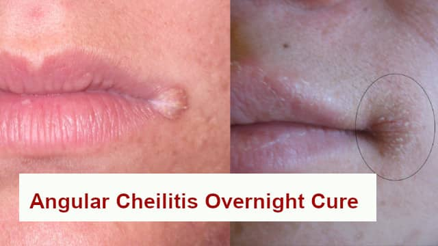 Angular Cheilitis Overnight Cure home remedy