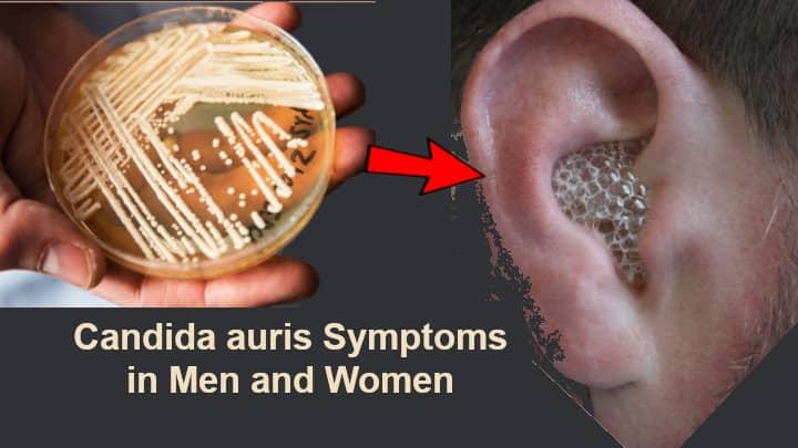 Candida auris Symptoms in Men and Women
