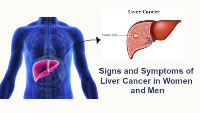 Signs and Symptoms of Liver Cancer in Women and Men