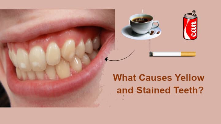 What Causes Yellow Teeth in teens and adults