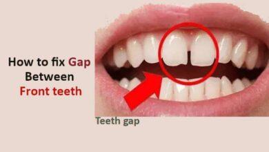 How to Fix Gap Between Front teeth