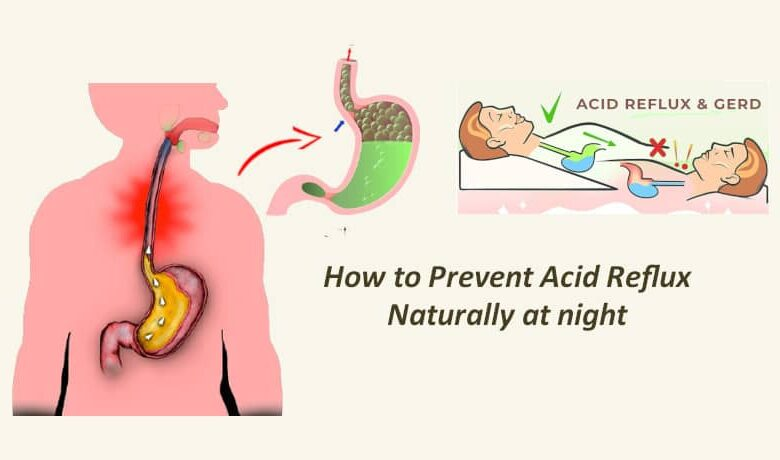 How to Prevent Acid Reflux Naturally