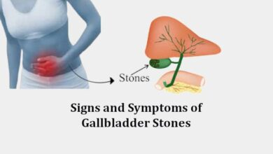 Signs and Symptoms of Gallbladder Stones