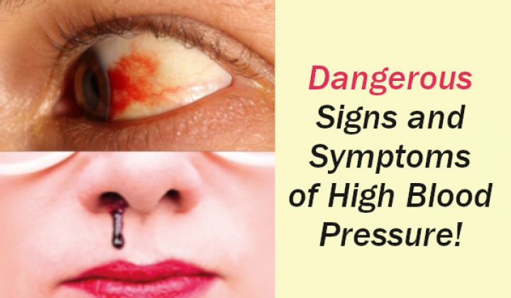 Signs-and-Symptoms-of-High-Blood-Pressure.jpeg