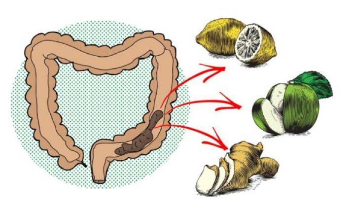 colon-1.jpg