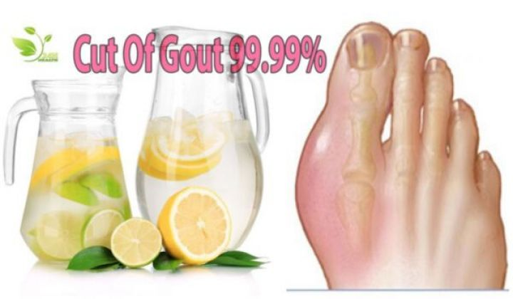 Gout Treatment: How to Get rid of Gout Pain Attack - Right