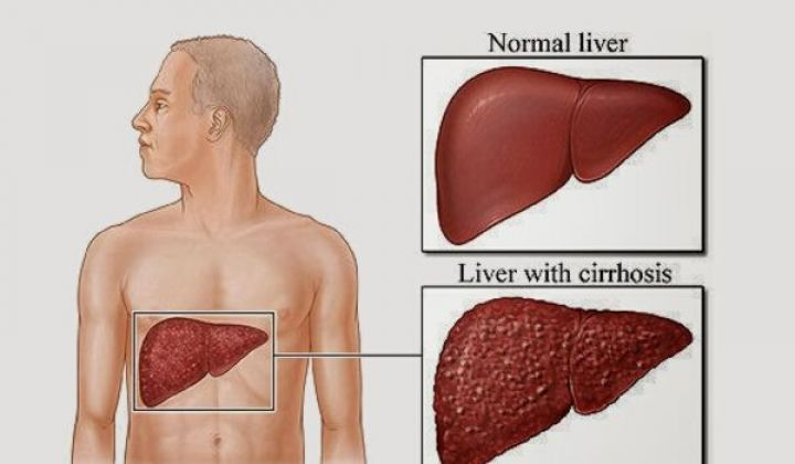 liver-1.jpeg